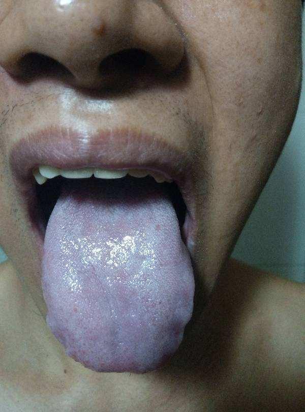 舌头发干(舌头发麻是什么原因)