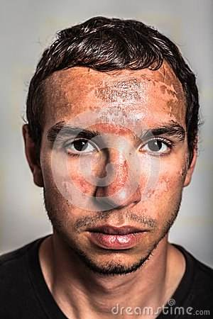 sunburn <strong>skin<\/strong> peeling on male face caused by extended exposure on