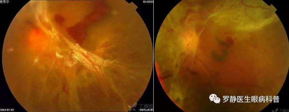 糖尿病多久会出现视网膜病变(糖尿病多久会引起视网膜病变)